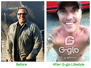 G-glo Before and After Chris f